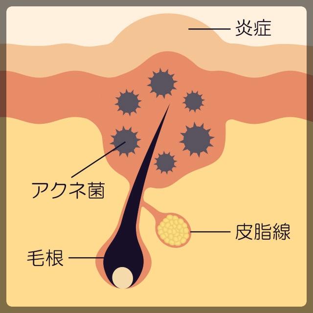 アクネ菌が炎症を起こしニキビができる
