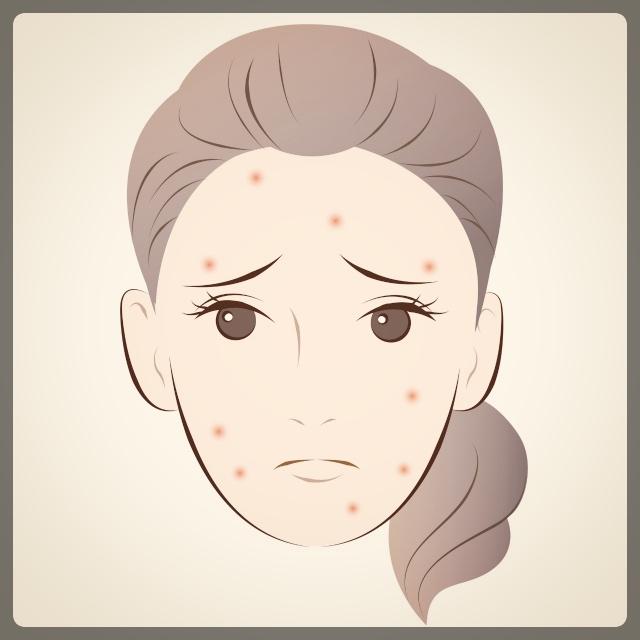 どんなニキビが皮膚科に相談するべきか
